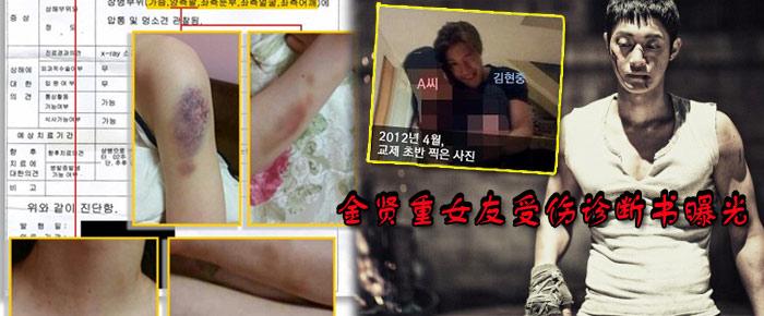 【暴力女友】金贤重女友被殴诊断书曝光 胸脸多处外伤谎言被戳破